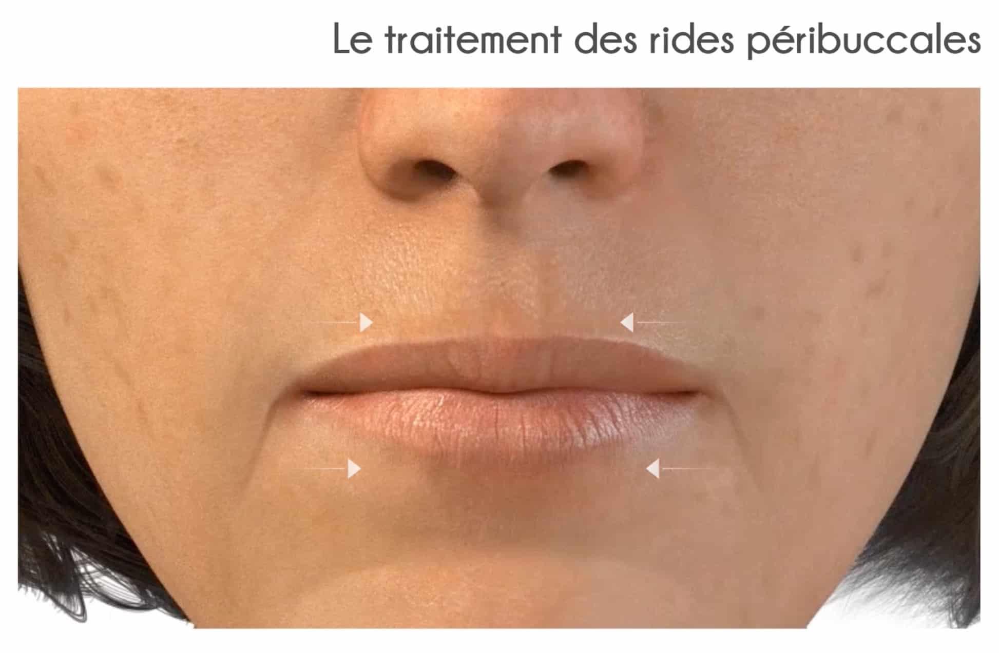 ... l acide hyaluronique filorga Repulpez vos lèvres sans chirurgie -  Médecine esthétique Lyon ... 4b43ce6587d