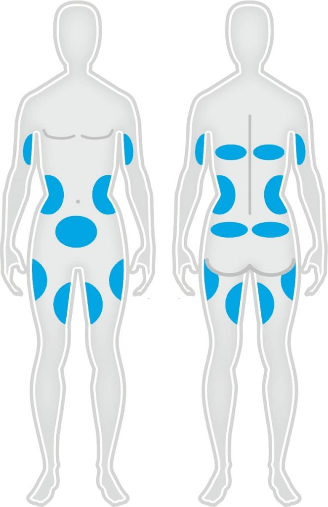 Zones traitement CoolSculpting