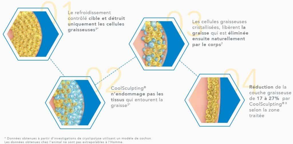 Les étapes d'un traitement Coolsculpting