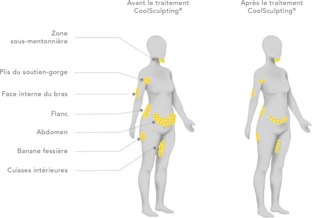 Zones traitées coolsculpting lyon