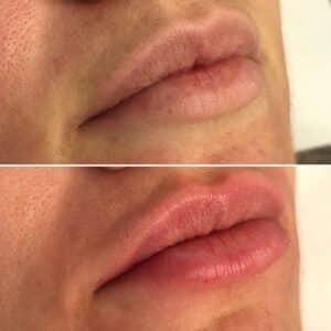Injection des lèvres à l'acide hyaluronique à Lyon au Centre Esthétique Lyon