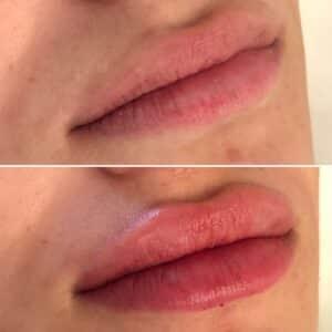 Injection des lèvres à Lyon au Centre Esthétique Lyon