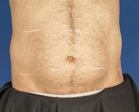 Avant le traitement Velashape 3 d'un homme au Centre Esthétique Lyon